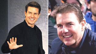 Tom Cruise se deja ver con el rostro hinchado en un juego de béisbol