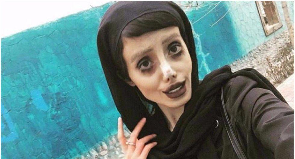 """Revelan cómo lucía la joven que se """"transformó"""" en Angelina Jolie antes de cirugías (FOTOS)"""