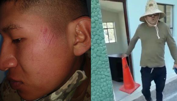 Arequipa: Militar denuncia que sujeto lo abofeteó tras pedirle que se identifique | VIDEO