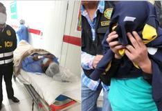 Hombre muerde y amputa dedo a su pareja en medio de discusión en Cusco