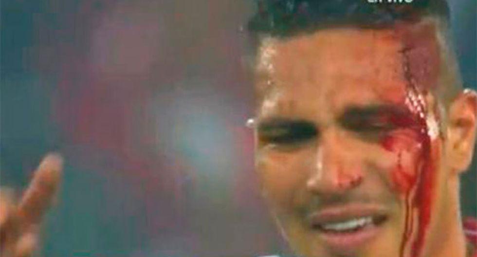 Paolo Guerrero sufrió corte en la cabeza en el Perú - Uruguay (VIDEO)