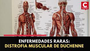 Enfermedades raras: ¿Qué es la distrofia muscular Duchenne?