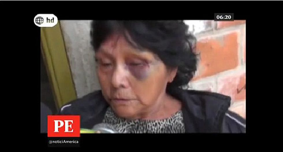 Delincuentes golpean brutalmente a anciana para robarle sus ahorros