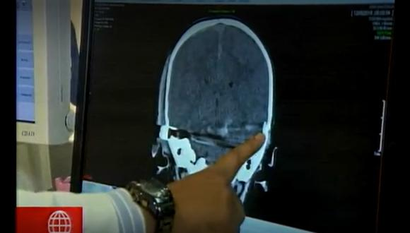 Bebé que recibió bala perdida en la cabeza salió de UCI luego de años y ahora necesita apoyo económico (Captura: América TV)