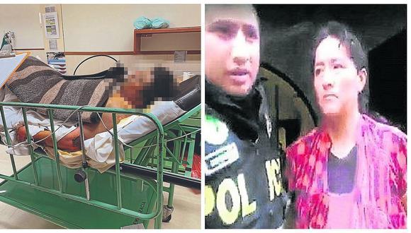 Luego de varios días de agonía fallece hombre que fue quemado vivo por su pareja