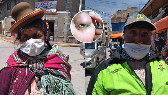 Arequipa: Extraen tumor del ojo a una adolescente natural de Crucero