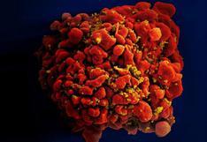 Tras 40 años de investigación sobre el sida, ¿qué tan cerca está la vacuna?