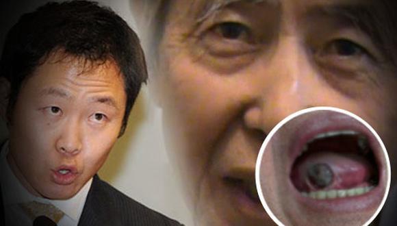 Kenji Fujimori mostró fotografía de la lesión en la cavidad bucal de su padre