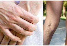 ¿Por qué las venas sobresalen de la piel?