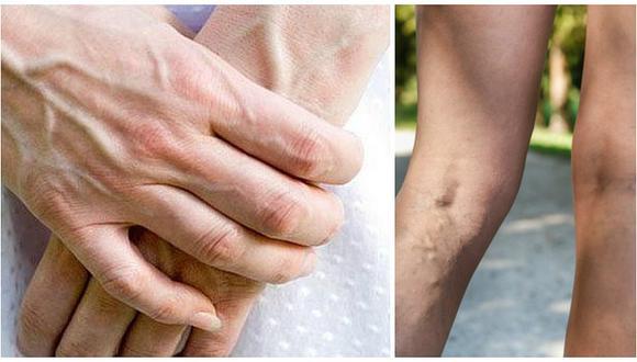 ¿Tus venas sobresalen de la piel? Descubre el significado