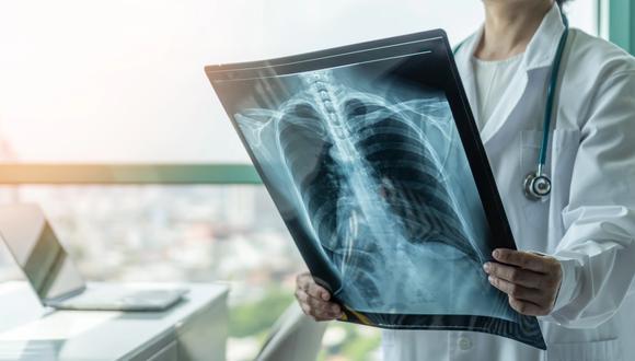 La especialista sostuvo que los pacientes asintomáticos del virus también sufrirán daños en los pulmones.