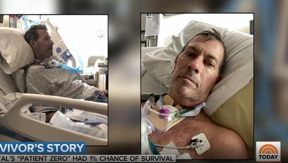 Coronavirus USA | Gregg Garfield: Le amputaron casi todos los dedos de la mano | Sobrevivió al Covid-19. Foto: captura video Instagram todayshow
