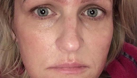 Mujer se hizo un tratamiento de belleza en oferta y terminó con cuatro cejas (FOTOS)