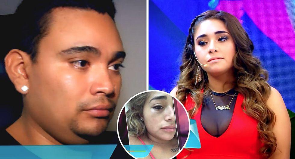 """Expareja de Josimar denuncia al salsero por violencia física: """"Le rompió la nariz"""" (VIDEO)"""