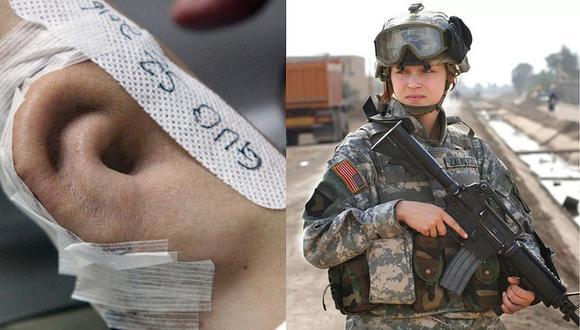Soldado de EE.UU. pierde oreja en accidente y doctores le injertan una en el brazo