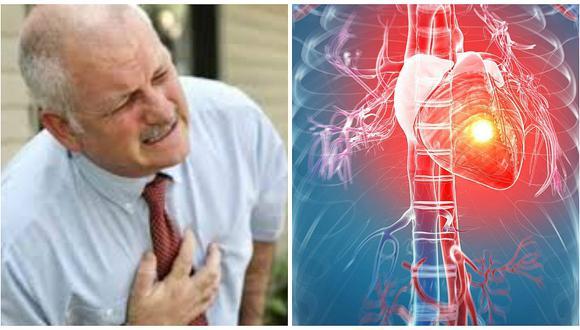 """Ataque cardíaco """"silencioso"""" podría causarte la muerte en pocos segundos"""