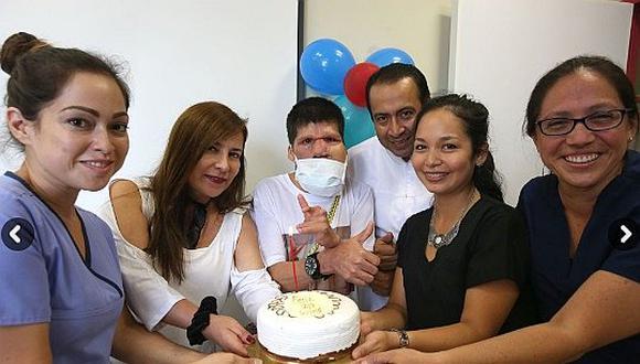 ¡Su fe lo salvó! reconstruyen rostro de paciente con tumor que comprometía su vida