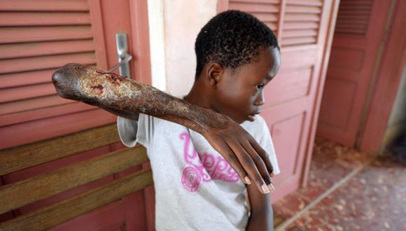 En más de 30 países se han visto casos de úlcera de Buruli, especialmente en África y Australia. (Foto: ISSOUF SANOGO / AFP)