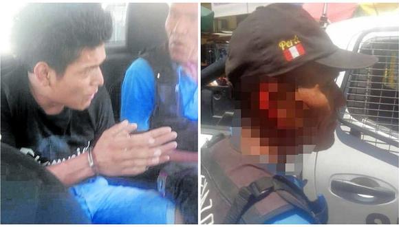 Sujeto detenido por serenazgo casi le arranca la oreja a un agente