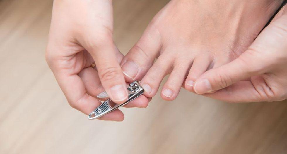 Puedes seguir unos simples consejos para cuidar tus uñas y evitar que se encarnen en tu dedo (Foto: Pixabay)