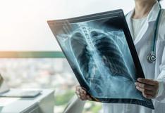 Estudio revela que pulmones de infectados por Covid-19 terminan más dañados que los de fumadores