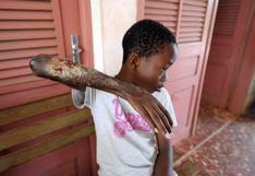 Úlcera de Buruli: una enfermedad que corroe la carne y preocupa en Australia