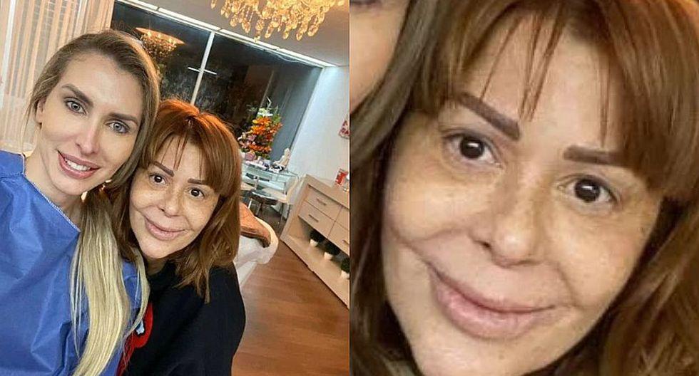 Alejandra Guzmán respondió sobre la polémica que causó su cambio de rostro