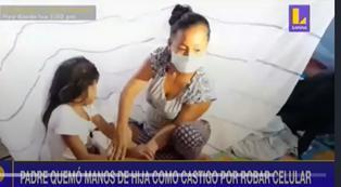 """Iquitos: padre quemó las manos de su hija de ocho años como castigo por """"robar celular"""" (VIDEO)"""