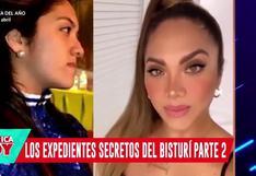 """Isabel Acevedo: El antes y después de """"Chabelita"""" fue revelado por América Hoy (VIDEO)"""