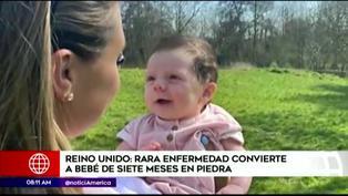 Bebé de siete meses se está 'convirtiendo en piedra' por rara enfermedad (VIDEO)