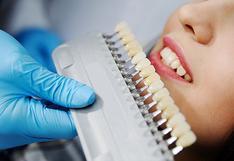 Carillas dentales: Ventajas y desventajas en la búsqueda de una sonrisa armónica