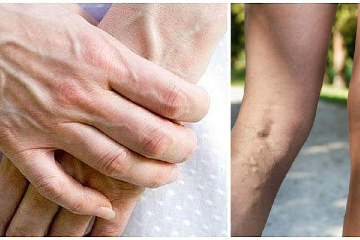 venas dilatadas en el brazo izquierdo