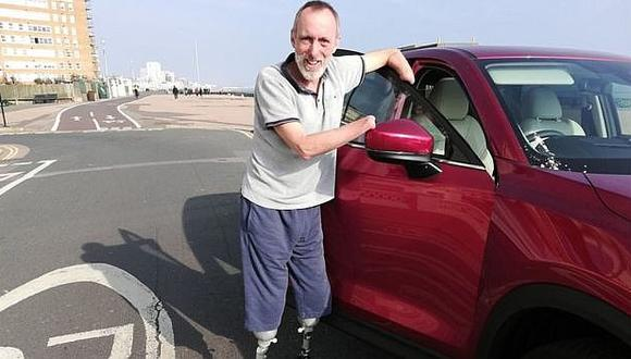 Este hombre es feliz después de pedir que se le amputara las manos y las piernas