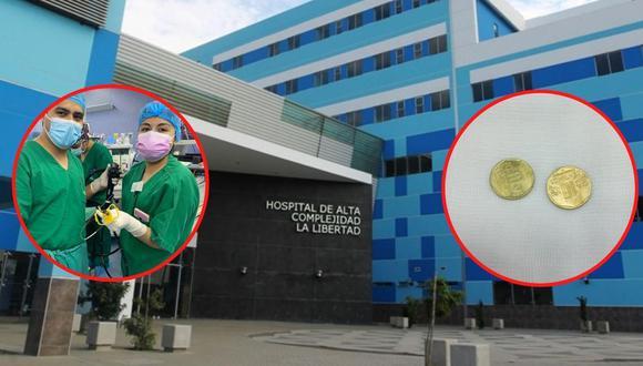 Todo el procedimiento se realizó con el equipo endoscópico del Hospital de Alta Complejidad Virgen de La Puerta.