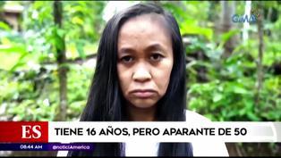 Mujer de 16 años parece de 50 debido a trastorno genético incurable (VIDEO)