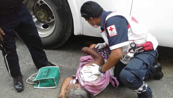 Anciana pierde su pierna en accidente