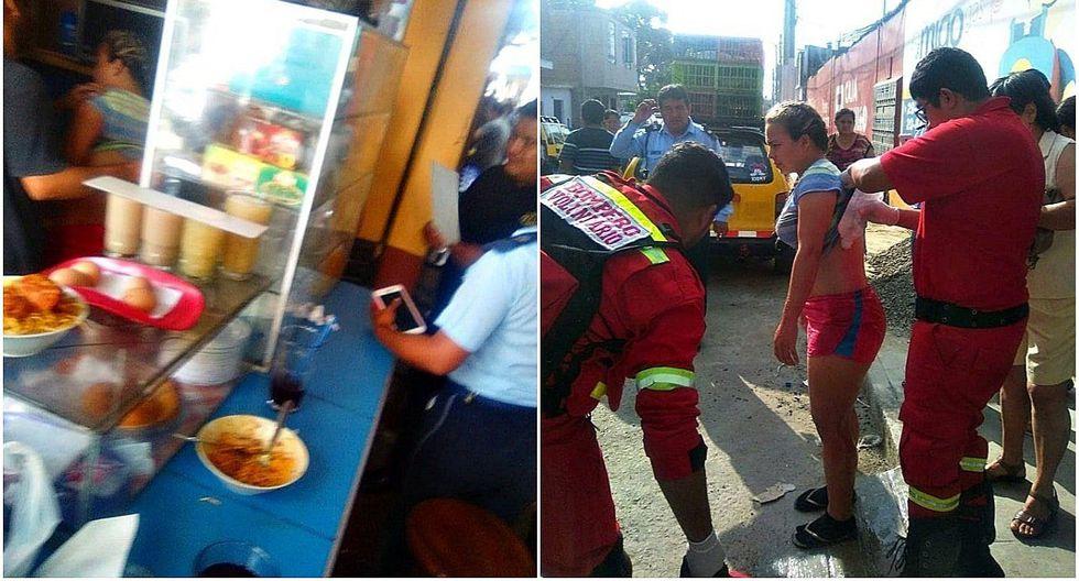 Venezolana termina con quemaduras en su cuerpo tras salpicarle aceite cuando freía papas rellenas