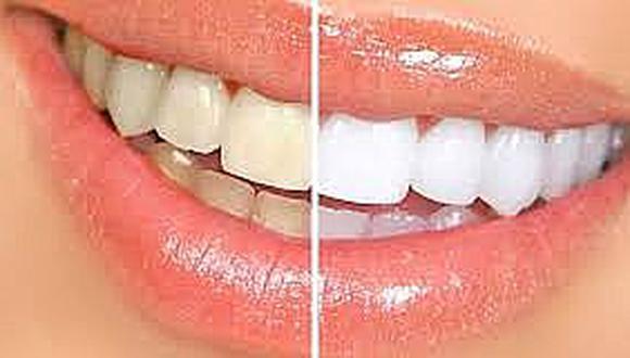 ¿Cómo blanquear los dientes en casa?