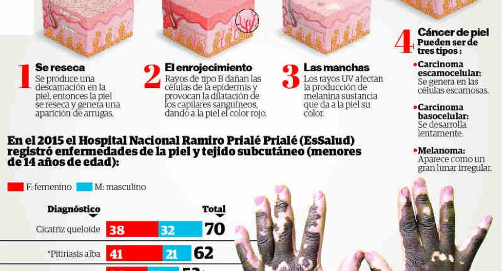 Menores en riesgo por enfermedades a la piel