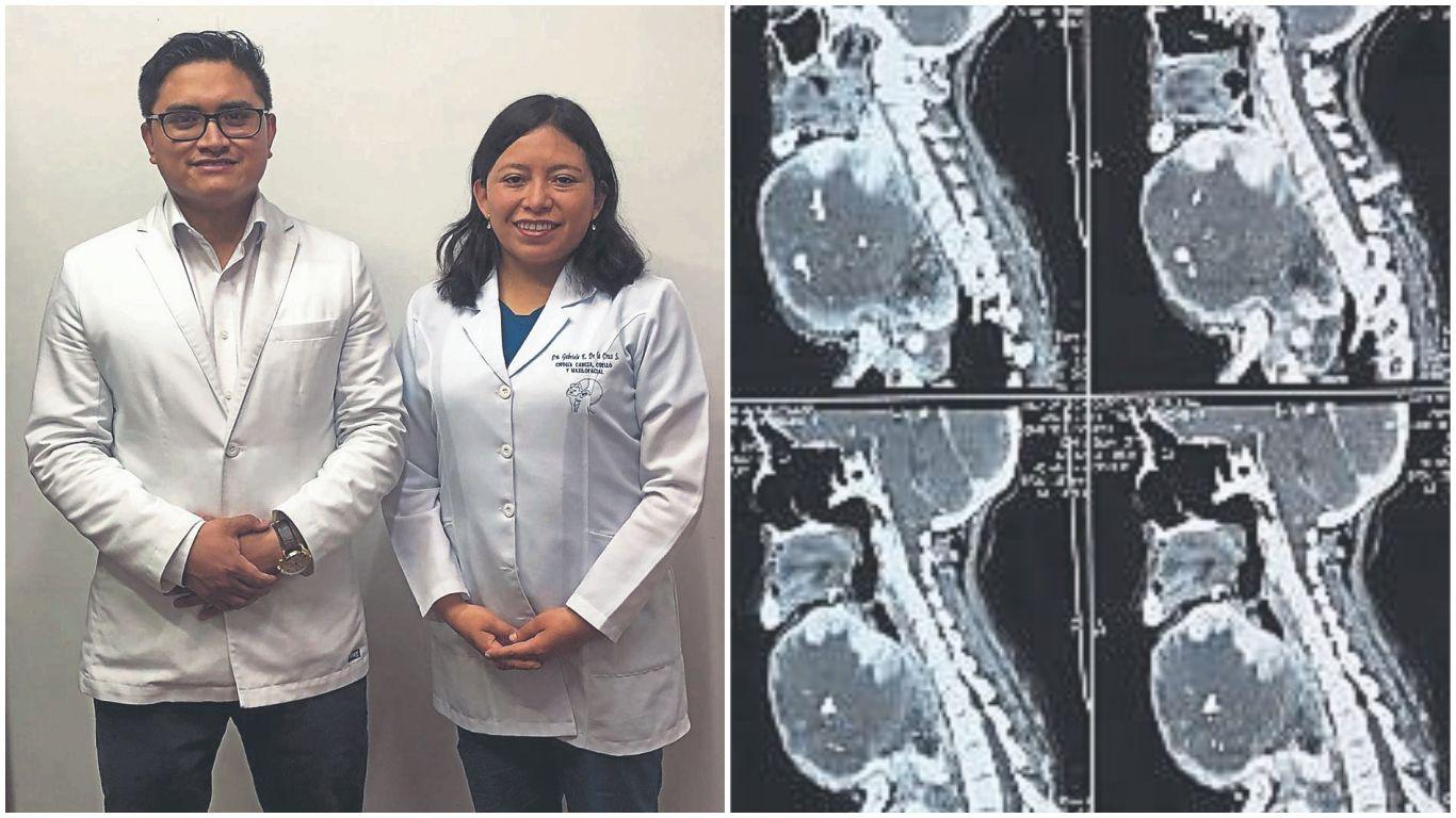 en-huancayo-extirpan-tumor-de-1-kg-a-mujer-que-consumio-sal-sin-yodo-por-20-anos